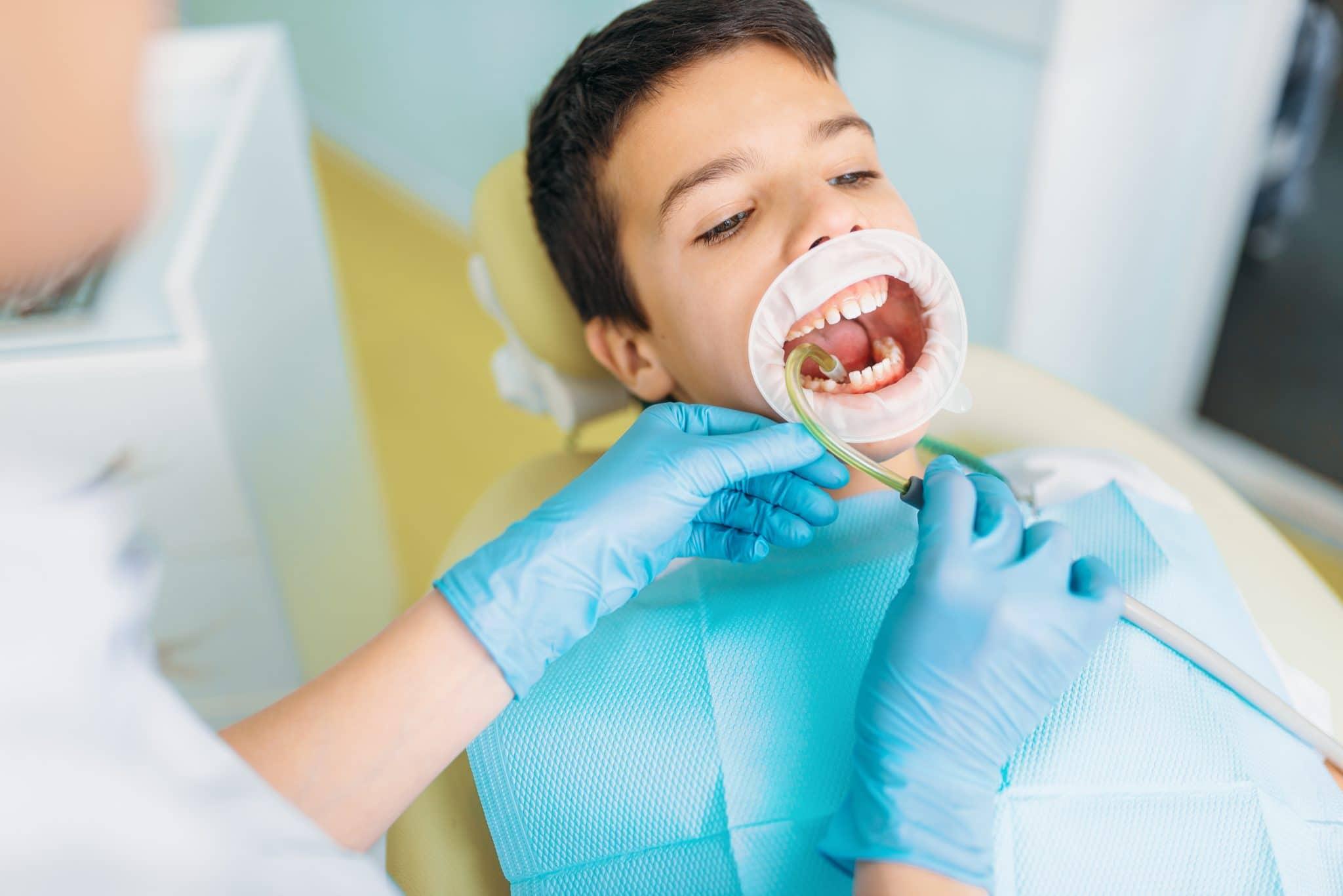 Photo of تسوس الأسنان عند الأطفال الأسباب وطرق العلاج