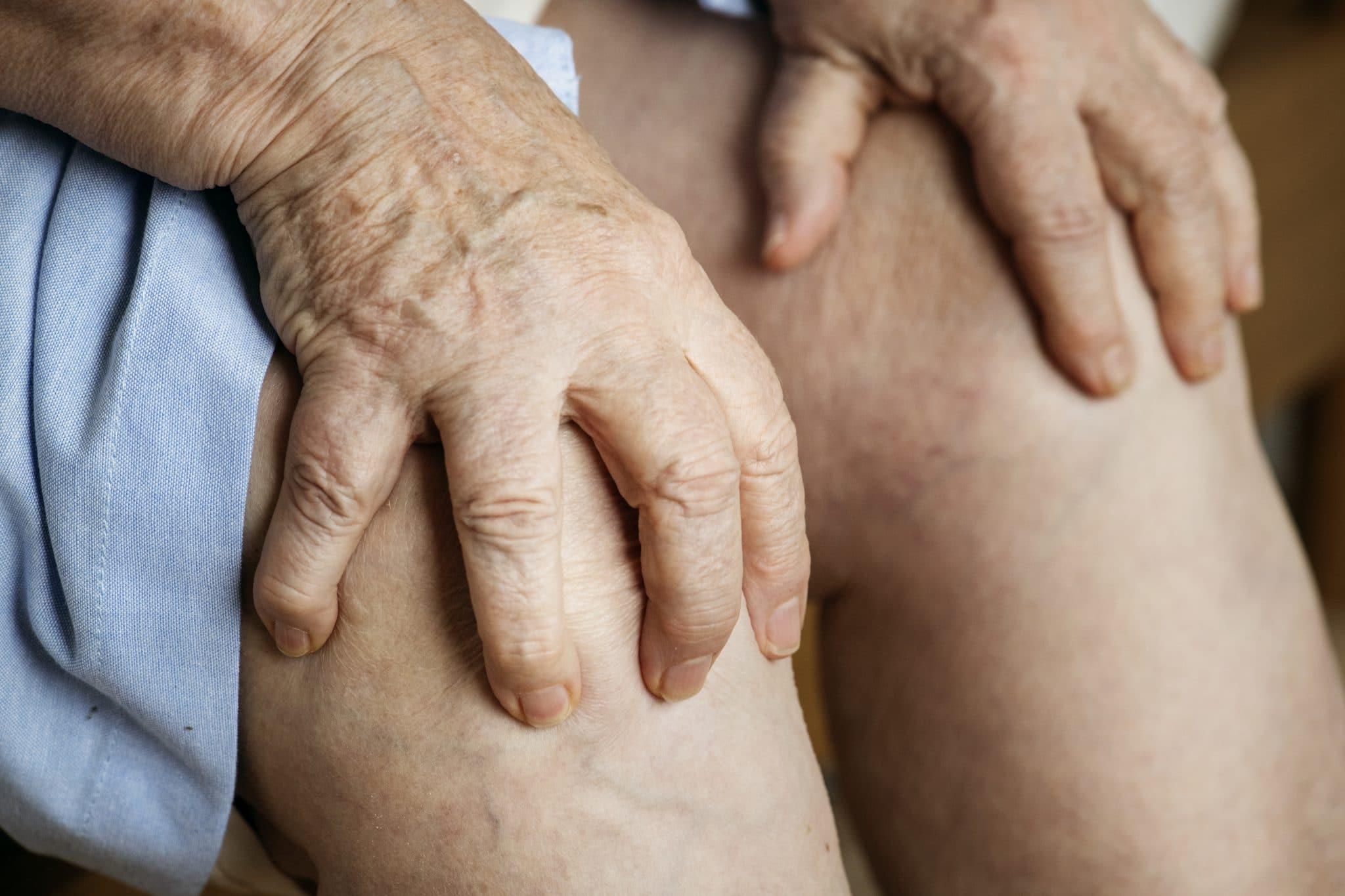 Photo of النقرس الأعراض والأسباب وطرق العلاج الطبيعية