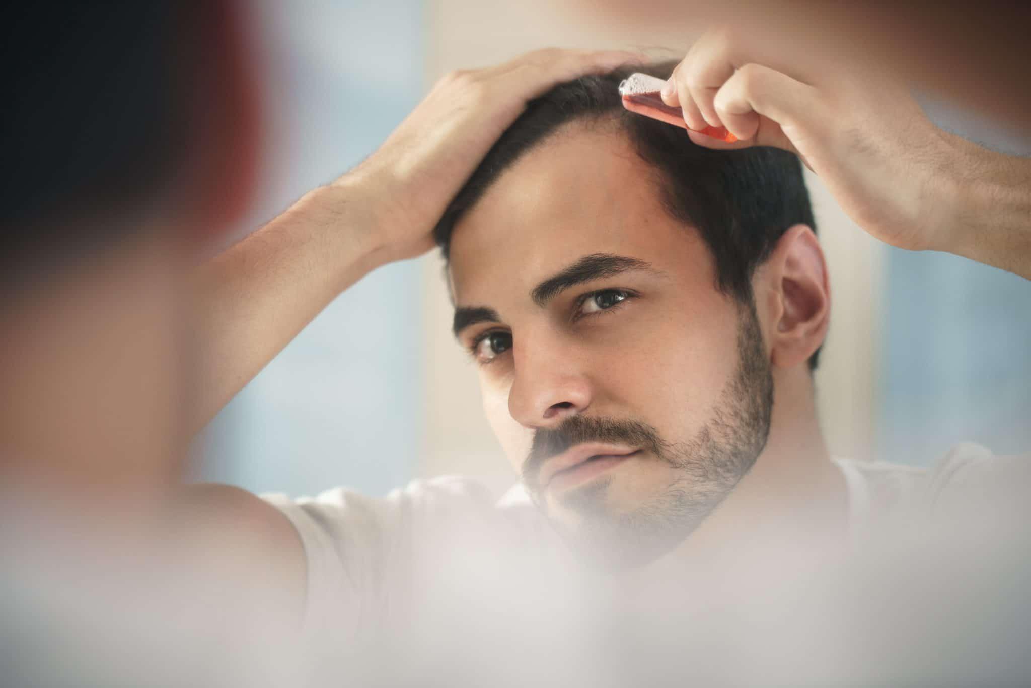 Photo of تساقط الشعر الاسباب وطرق العلاج الطبيعية