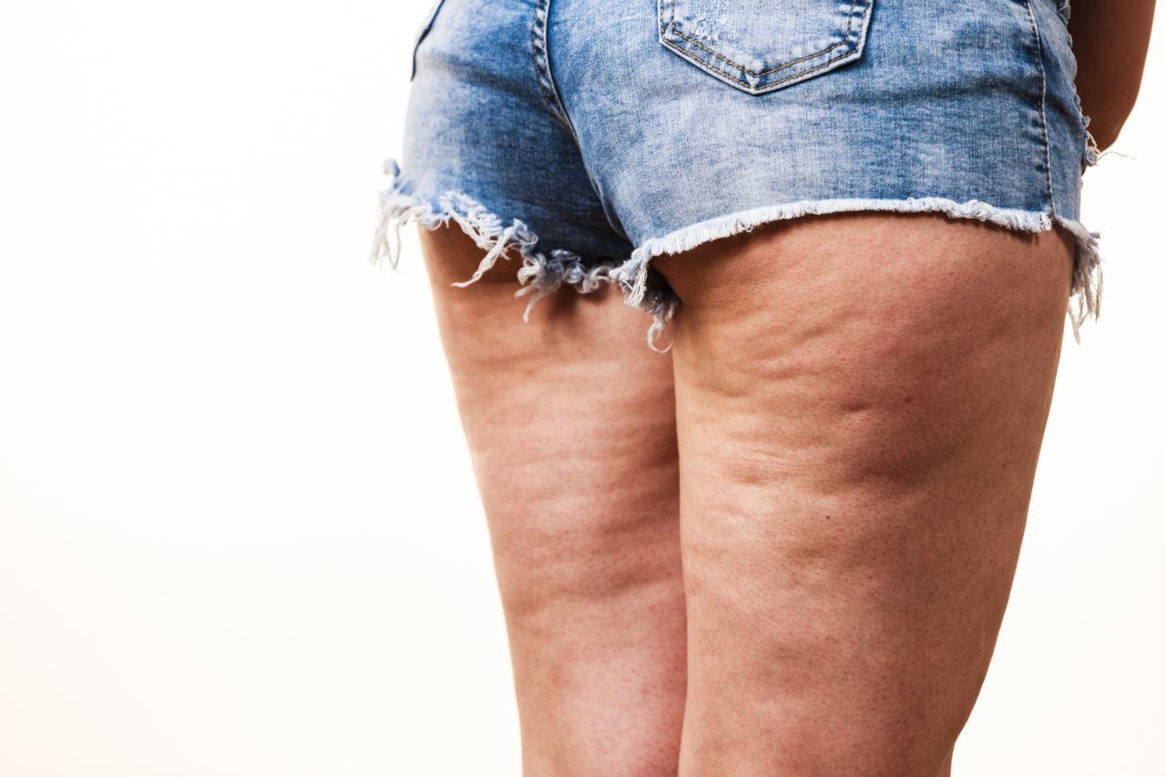 Photo of أشهر 5 أسباب تؤدي إلى السيلوليت وكيف يتم العلاج