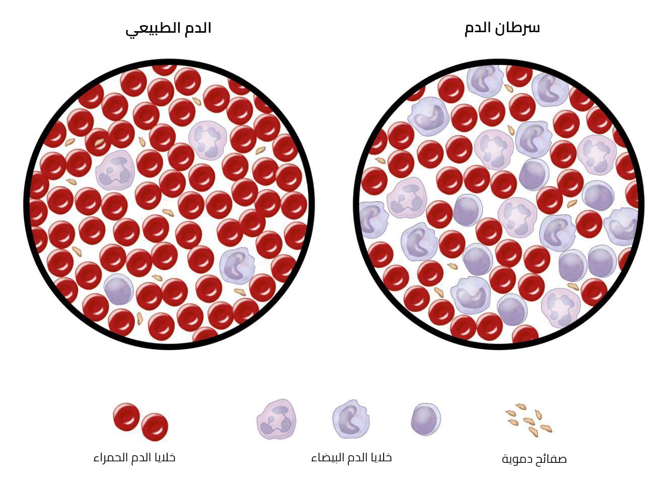 Photo of سرطان الدم كيف تحدث الاصابة وماهي أنواعه وطرق التشخيص والعلاج