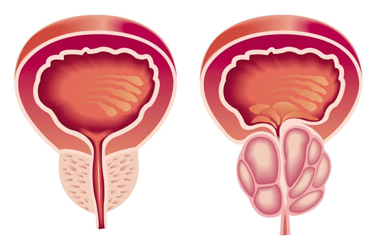 Photo of سرطان البروستاتا الأسباب، الأعراض، طرق العلاج، كل ما يجب عليك معرفته