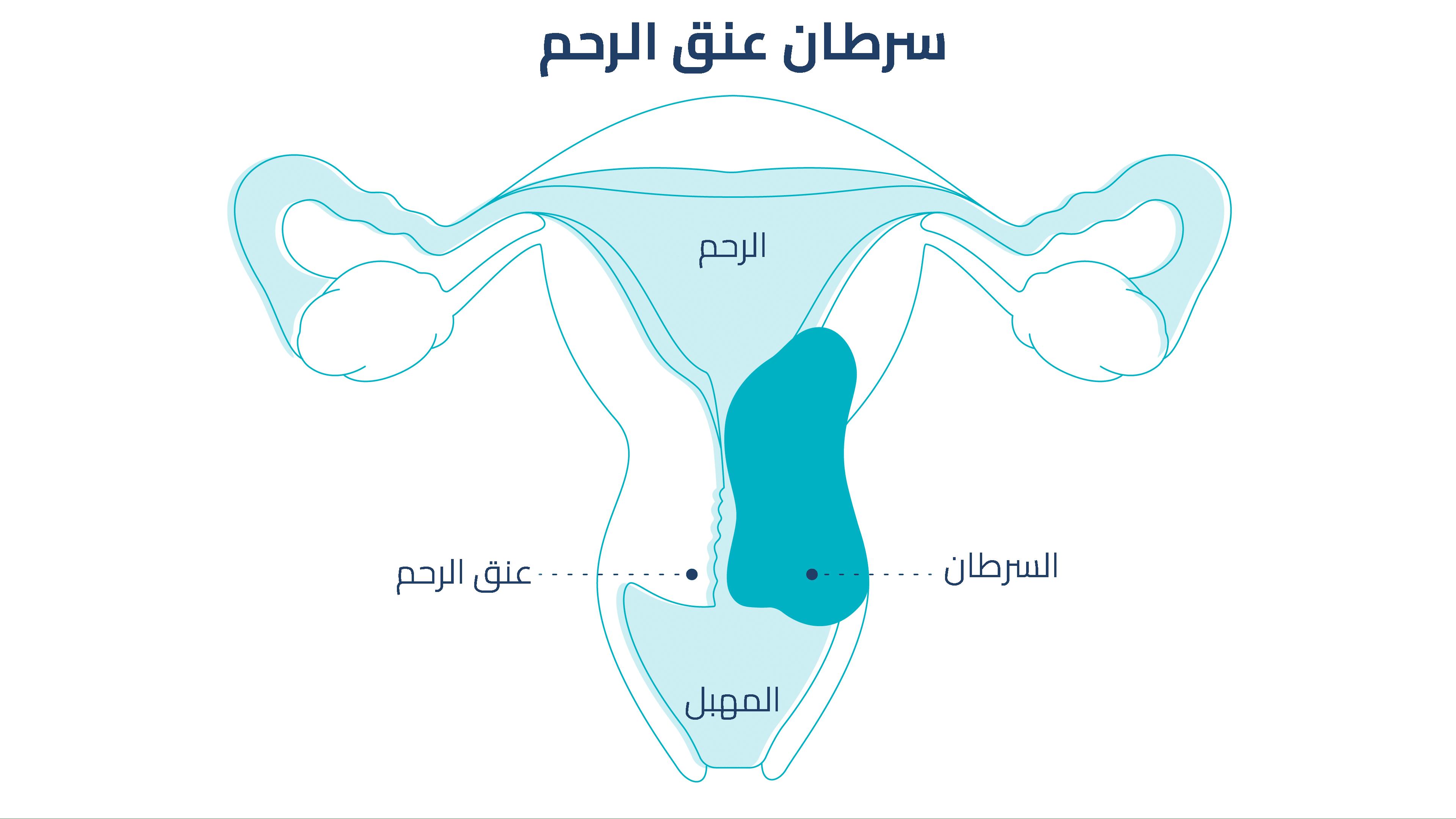 Photo of سرطان عنق الرحم أسبابه وأعراضه وطرق الوقاية والعلاج، ملف شامل