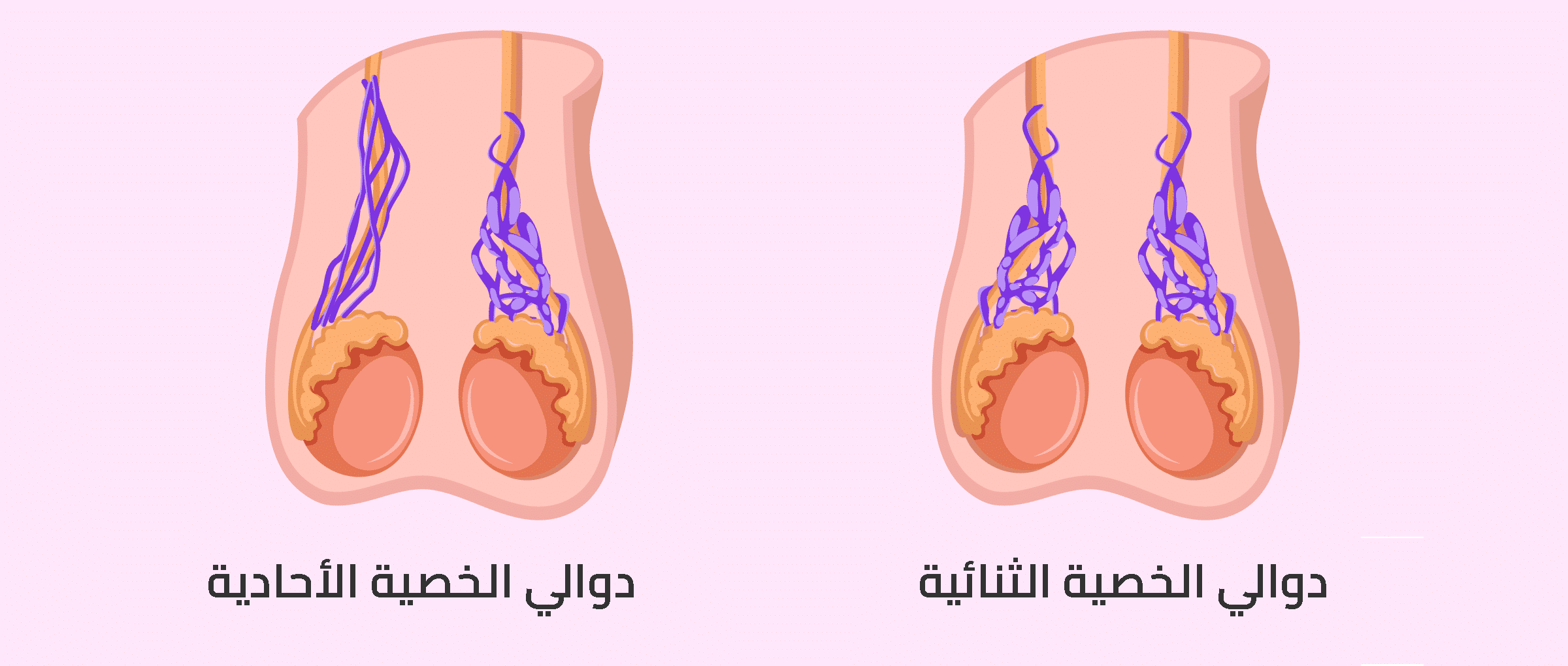 Photo of دوالي الخصية الأسباب الأعراض وطرق العلاج