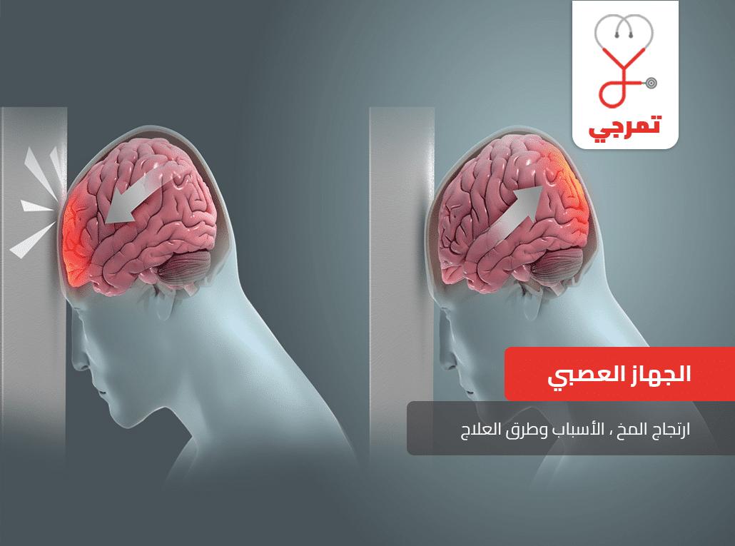 Photo of ارتجاج المخ Brain concussion الأسباب وطرق العلاج ملف شامل