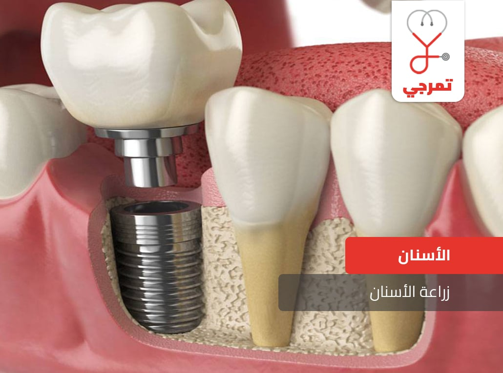 زراعة الأسنان أنواع التركيبات ومخاطرها كل ما يهمك تمرجي