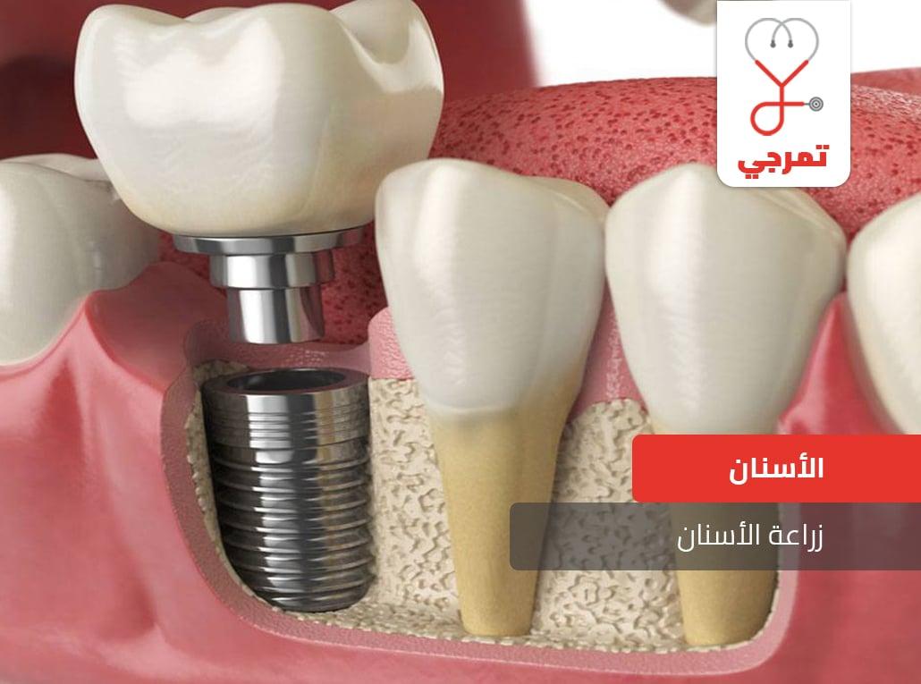 Photo of زراعة الأسنان أنواع التركيبات ومخاطرها، كل ما يهمك
