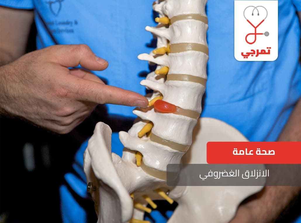 Photo of الانزلاق الغضروفي الأسباب والأعراض وطرق العلاج