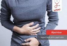 Photo of جفاف المهبل ما قبل الدورة الشهرية الأعراض والأسباب وطرق العلاج