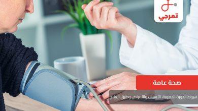 Photo of هبوط الدورة الدموية ، الأسباب والأعراض وطرق العلاج