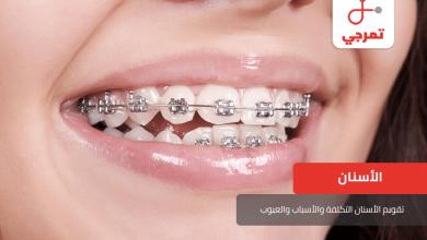 Photo of تقويم الأسنان التكلفة والأسباب والعيوب