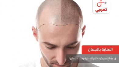 Photo of زراعة الشعر كيف تتم العملية وكم تكلفتها