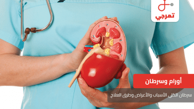Photo of سرطان الكلى الأسباب والأعراض وطرق العلاج