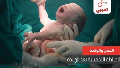 Photo of الخياطة التجميلية بعد الولادة