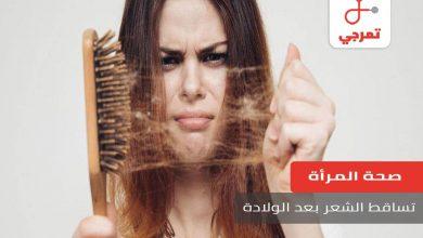Photo of تساقط الشعر بعد الولادة