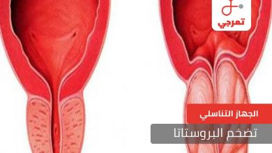 Photo of تضخم البروستاتا الأسباب الأعراض وطرق العلاج