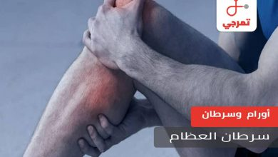 Photo of سرطان العظام الأسباب الأعراض المراحل والتشخيص وطرق العلاج