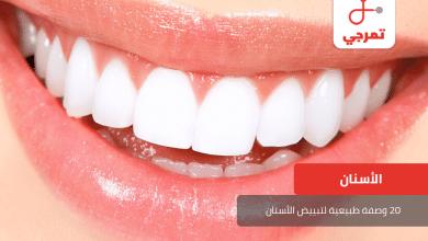 Photo of تبييض الأسنان وأكثر من 20 وصفة طبيعية لتبييض الأسنان