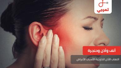 Photo of التهاب الأذن الخارجية الأسباب وطرق مختلفة للعلاج