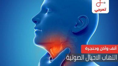 Photo of التهاب الحنجرة وتأثيره على الحبال الصوتية