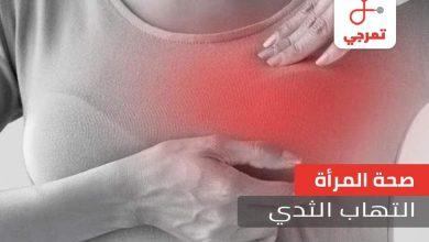 Photo of التهاب الثدي