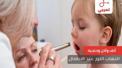 Photo of التهاب اللوز عند الأطفال الأسباب الأعراض والعلاج