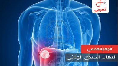 Photo of التهاب الكبد الوبائي الأنواع الأسباب الأعراض والعلاج