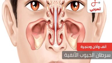 Photo of سرطان الجيوب الأنفية الأسباب الأعراض كيف يتم التشخيص
