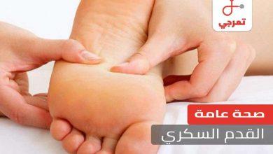 Photo of القدم السكري الأسباب الأعراض وكيف يتم التشخيص وطرق العلاج