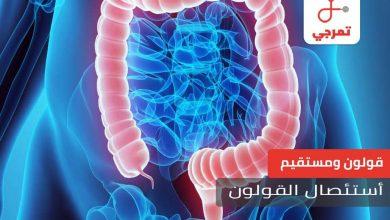 Photo of استئصال القولون