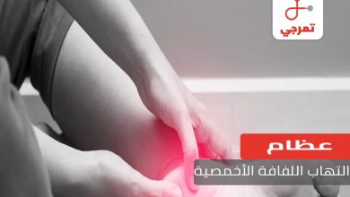 Photo of التهاب اللفافة الأخمصية الأسباب الأعراض والعلاج