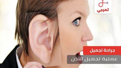 Photo of عملية تجميل الأذن كل ما تريد معرفته عن العملية