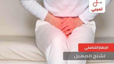 Photo of تشنج المهبل الأسباب الأعراض وكيف يتم العلاج