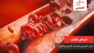 Photo of تصلب الشرايين وخطورتها وكيف تحمي نفسك من الإصابة بها