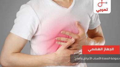 Photo of حموضة المعدة الأسباب الأعراض والعلاج