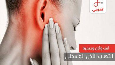 Photo of التهاب الأذن الوسطى الأسباب الأعراض والعلاج