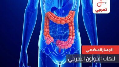 Photo of التهاب القولون التقرحي الأسباب الأعراض والعلاج