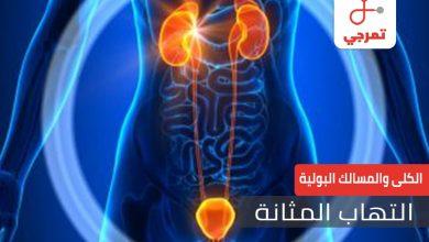 Photo of التهاب المثانة الأسباب الأعراض والعلاج