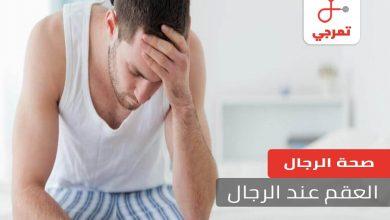 Photo of العقم عند الرجال الأسباب وهل يمكن العلاج