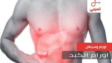 Photo of أورام الكبد الأسباب الأعراض التشخيص وطرق العلاج