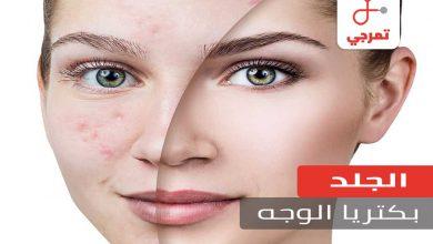 Photo of بكتيريا الوجه الأسباب الأعراض التشخيص وطرق العلاج