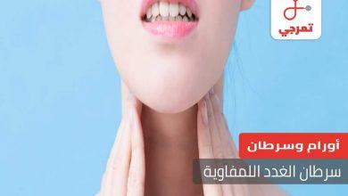Photo of سرطان الغدد الليمفاوية الأسباب الأعراض التشخيص والعلاج