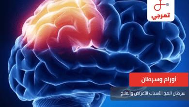 Photo of سرطان المخ الأسباب الأعراض والعلاج