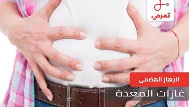 Photo of غازات المعدة الأسباب وطرق العلاج