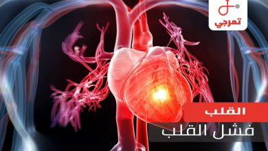 Photo of فشل القلب الأسباب الأعراض وهل يوجد له علاج