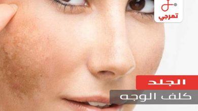 Photo of كلف الوجه الأسباب والعلاج ووصفات طبيعية للتخلص منه