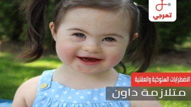 Photo of متلازمة داون وكيف تتعامل الأم مع طفلها في هذه الحالة