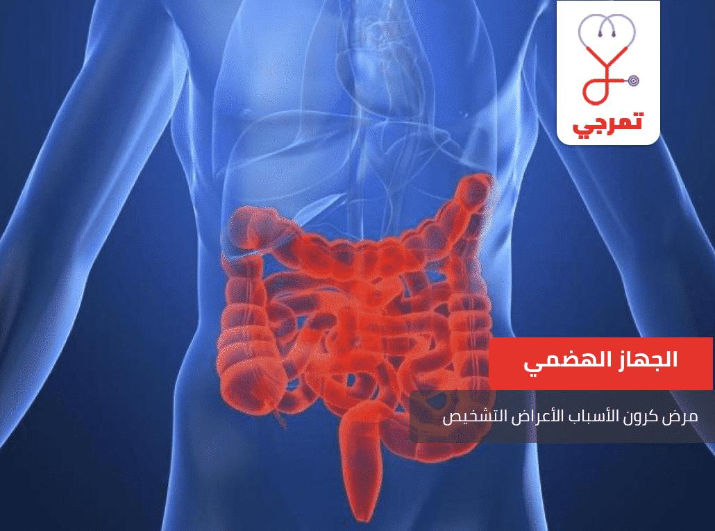 مرض كرون الأسباب الأعراض التشخيص وطرق العلاج تمرجي