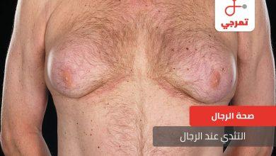 Photo of أسباب مشكلة التثدي عند الرجال وطرق علاجها