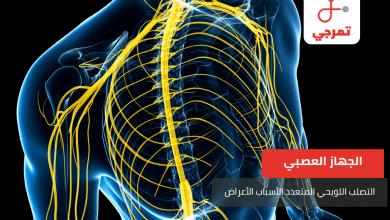 Photo of التصلب اللويحي المتعدد الأسباب الأعراض وطرق العلاج